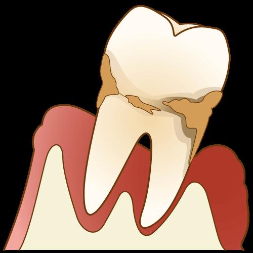 溝上歯科の歯周病治療について